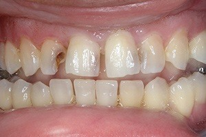 Decayed top teeth