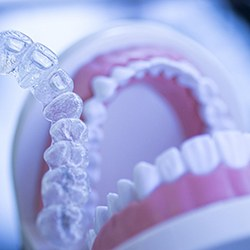 A clear Invisalign aligner in the forefront while a mouth mold remains in the background